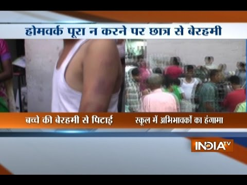 UP: Teacher beats up student for not doing homework  in Mathura