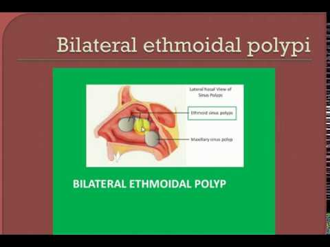 ENT LECTURES , Nasal Polypi , BILATERAL ETHMOIDAL POLYPI