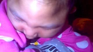Khoirun Nisa Baby Microcepaly