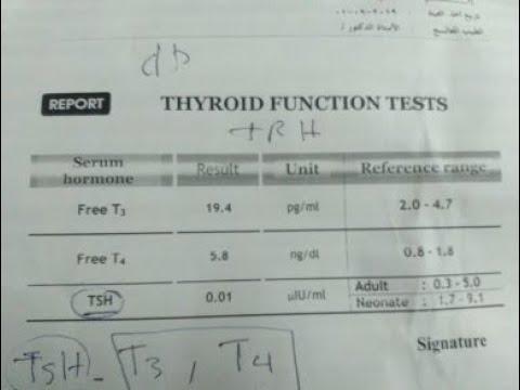 تفسير تحليل الغدة الدرقية Thyroid Funcation Test Youtube