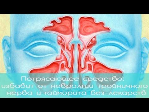 Гайморит - лечение, симптомы, как лечить в домашних условиях
