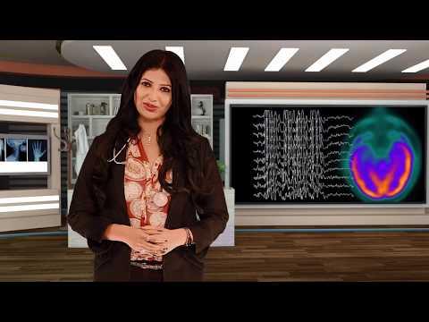 dr-swati-show-/seizure/mirgi/epilepsy/convulsions