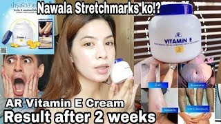 AR VITAMIN E CREAM RESULT AFTER 2 WEEKS! Nawala Stretchmarks ko!?