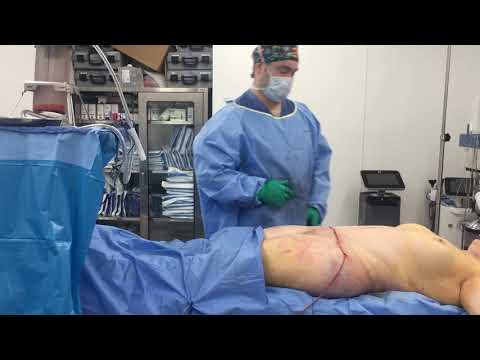 Tummy tuck and Revision Liposuction with Brazilian buttlift with Dr. Hughes