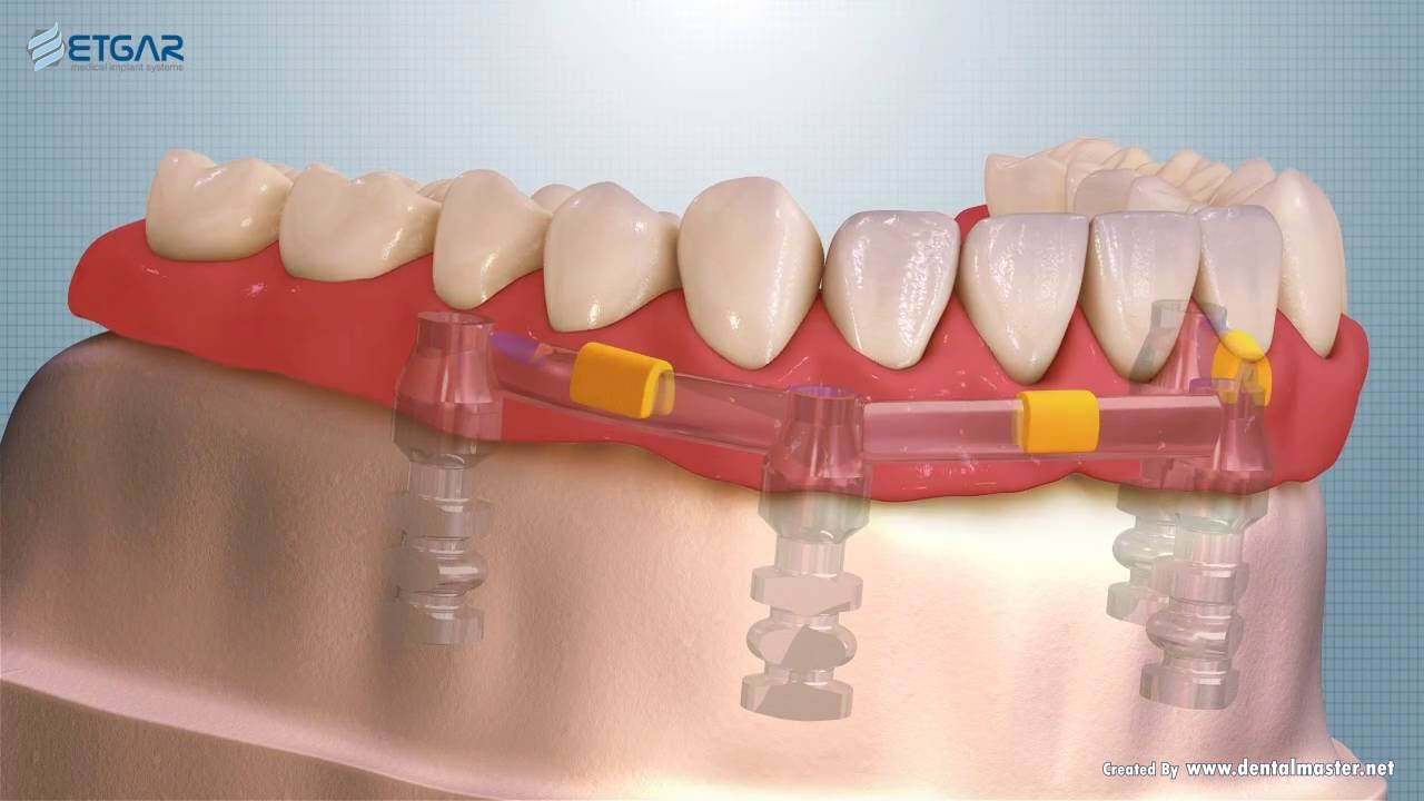 Etgar Implant Systems Bar Dolder 004 09 Youtube
