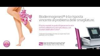 Biodermogenesi per le smagliature: i follow-up dopo 5 anni