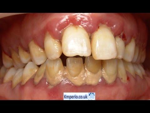 Treatment of Advanced Gum (Periodontal) Disease.