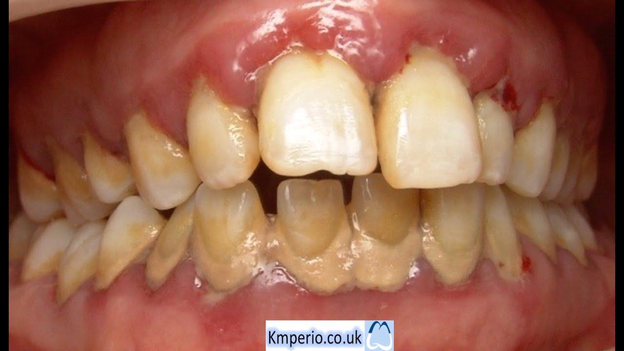 Treatment of Advanced Gum (Periodontal) Disease. - YouTube  Treatment of Ad...