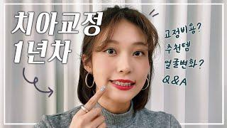 ⛓ 치아교정 1년차 : 교정 비용 공개 전후사진? 얼굴…