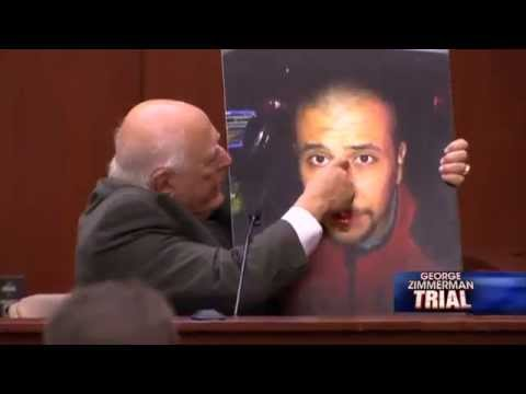 Zimmerman Trial Day 21 - Forensic Pathologist Says Trayvon Martin Was on Top of Zimmerman
