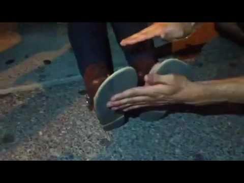 Supernatural power of God demonstrated: leg shortens