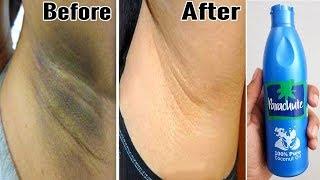 In Just 5 minutes Whitening Dark Underarm Challenge | 5 मिनट में अंडरआर्मस का कालापन दूर करें