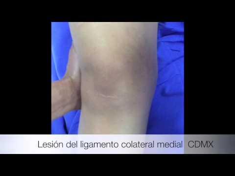 Lesión Del Ligamento Colateral Medial De La Rodilla - YouTube