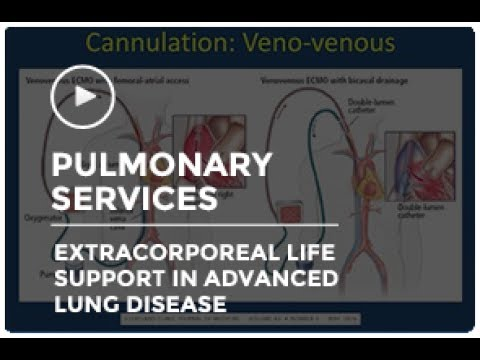 Extracorporeal Life Support in Advanced Lung Disease