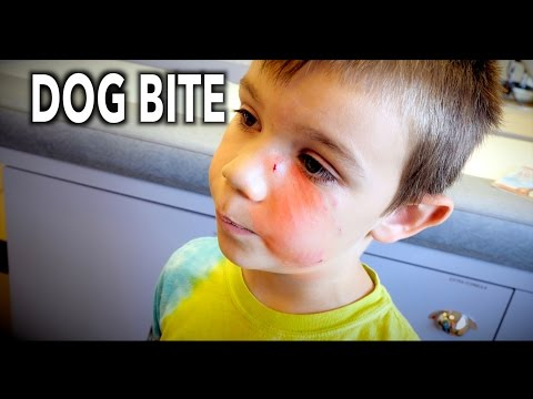 DOG BITE To The FACE! (Hilarious Kid Tells the Story) | Dr. Paul