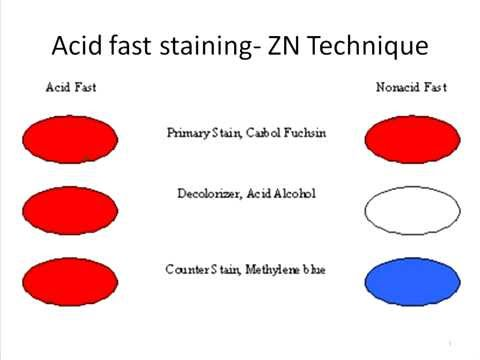 acid fast staining The ziehl–neelsen stain, also known as the acid-fast stain, was first described by  two german doctors: the bacteriologist franz ziehl (1859–1926) and the.