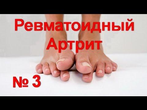 Артрит коленного сустава: симптомы, причины и лечение
