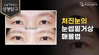 [성형기본지식] 처진눈의 눈썹밑거상과 매몰쌍꺼풀