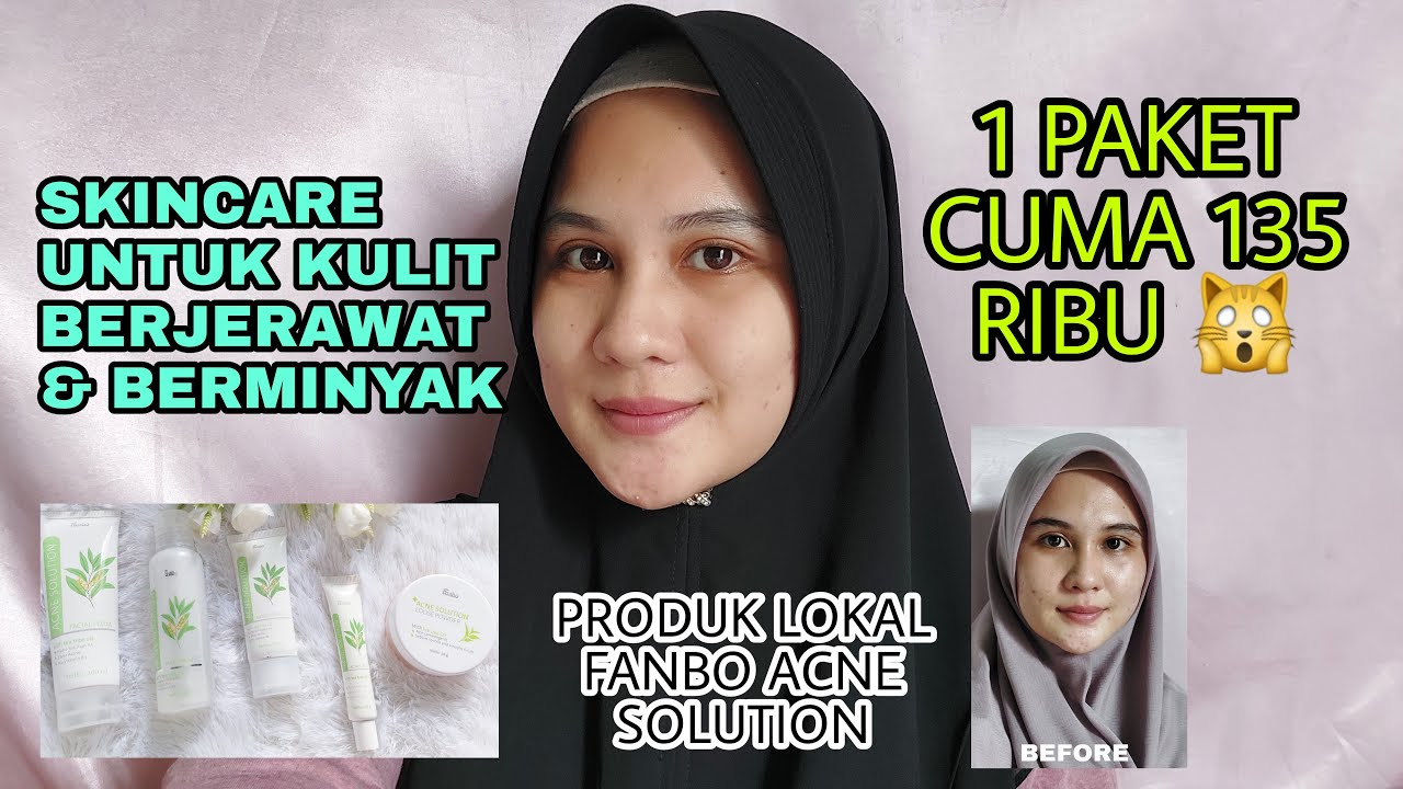 CARA MENGHILANGKAN JERAWAT & BEKASNYA (REVIEW FANBO ACNE SERIES) | Hesti Oktaviawati | Indonesia