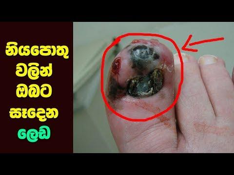 නියපොතු වලින් ඔබට සෑදෙන ලෙඩ මෙන්න -  Health Warnings Your Fingernails May Be Sending