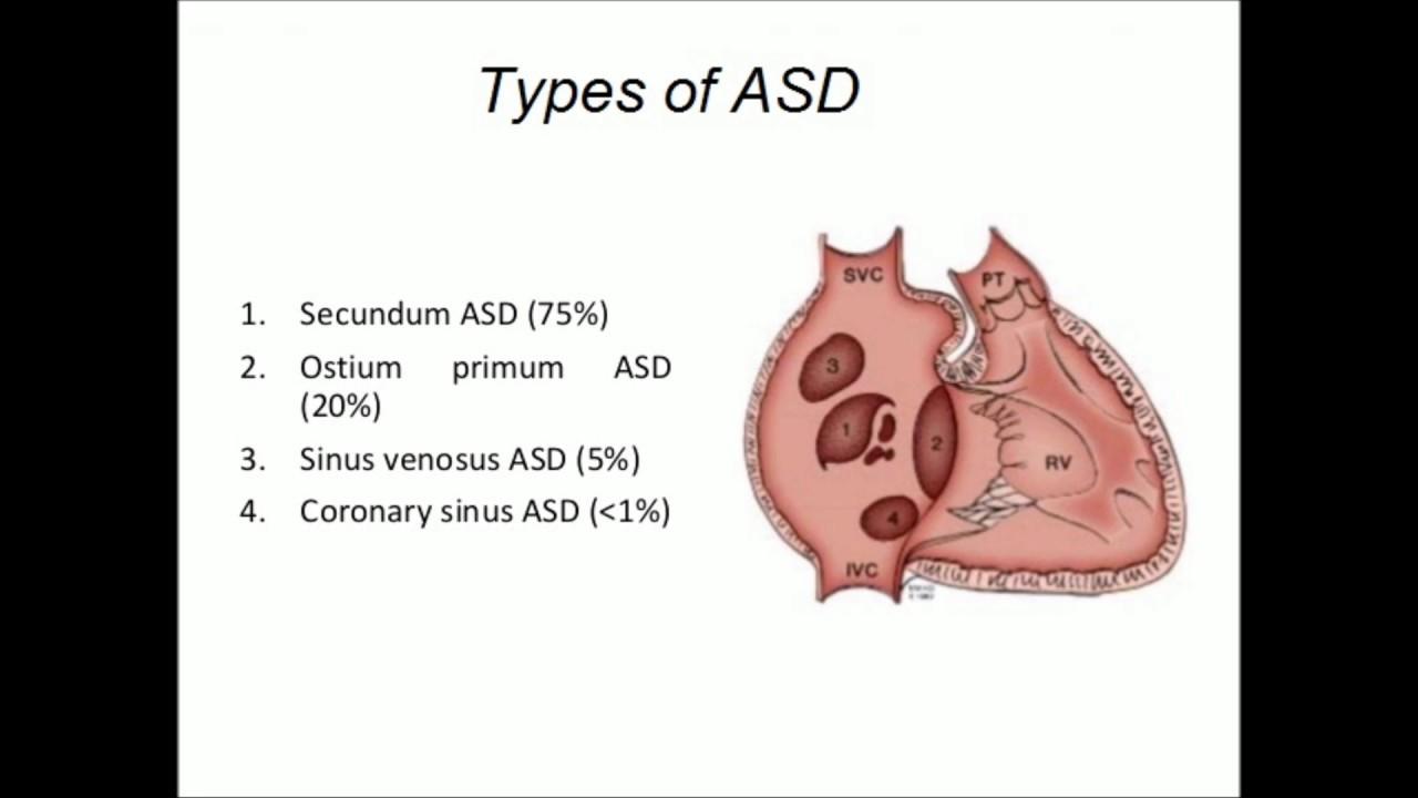 Sinus Venosus Atrial Septal Defect - YouTube  Sinus Venosus Asd
