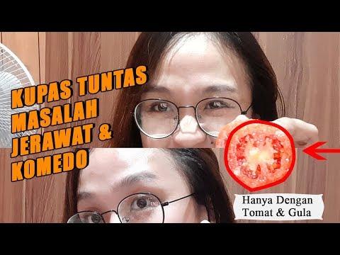 cara-menghilangkan-jerawat-&-flek-hitam-|-masker-tomat-dan-gula-bikin-wajah-putih-berseri