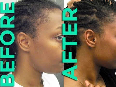 Jamaican Black Castor Oil Hairline
