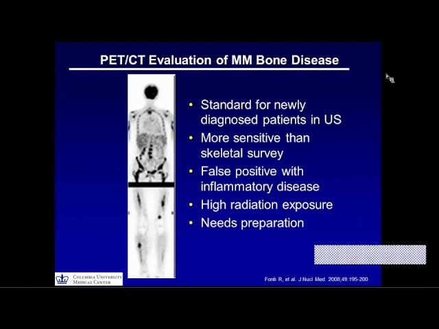 Bone Disease in Multiple Myeloma