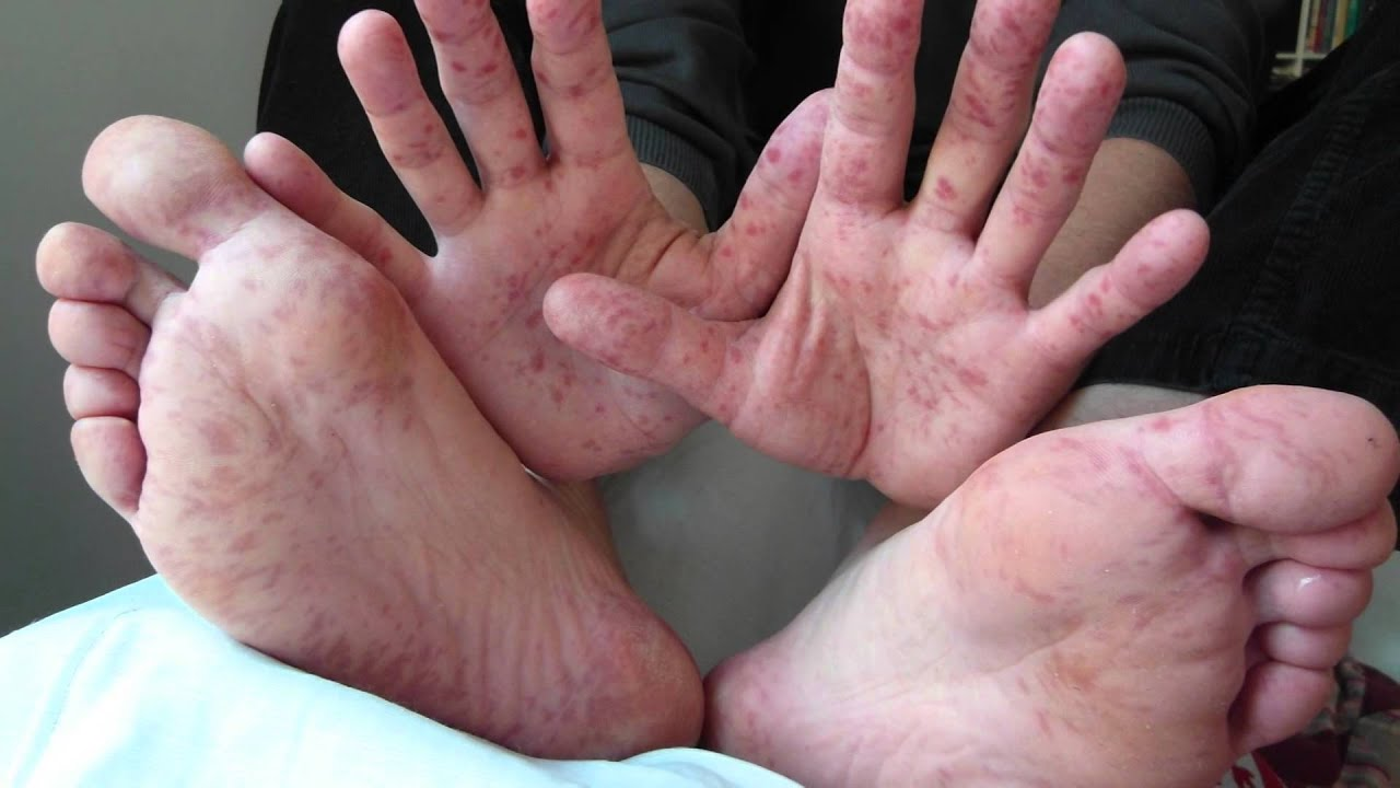 Spotting Hand Foot Mouth Disease Youtube