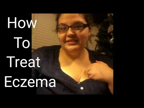 How to Treat Eczema | Product Review