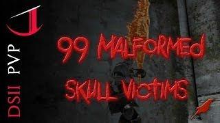99 Malformed Skull Victims