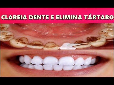 Clareia Os Dentes Remove Tartaro E Gengivite Basta Isto Youtube