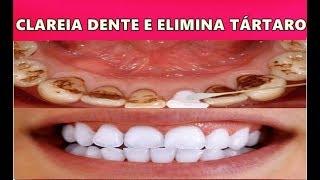 CLAREAR OS DENTES EM 3 MINUTOS, REMOVER TÁRTARO E GENGIVITE – BASTA ISTO