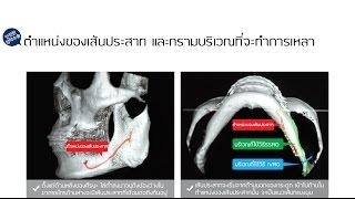 ศัลยกรรมเกาหลี โรงพยาบาลไอดี : POINT! ของการศัลยกรรมขากรรไกรด้วยความปลอดภัย