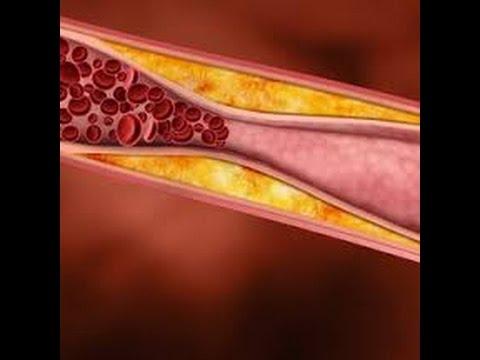 Лецитин. Польза и вред. Показания и инструкция по применению