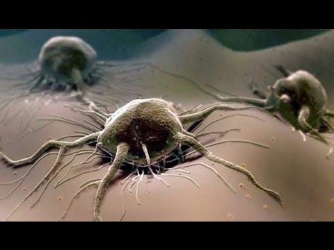 лечение паразитов йодом