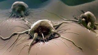 Лечение содой рака на всех стадиях