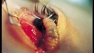 LA MOSCA DE LA MUERTE. Un parásito de la piel humana
