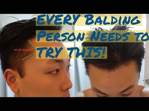 Every Balding Person NEEDS TO TRY THIS!