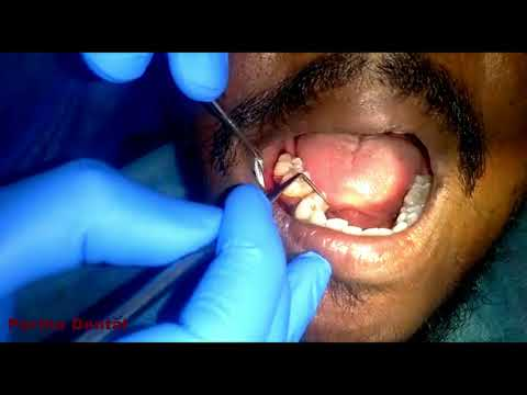 Immediate Placement of Irregular Tooth with Implant II Partha Dental II