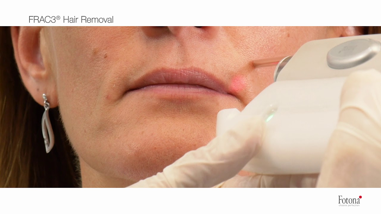 Laser Hair Removal Near Me - AMARILLO, TX - Laser Hair Removal