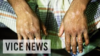 Toxic Tanneries Poisoning Workers in Bangladesh