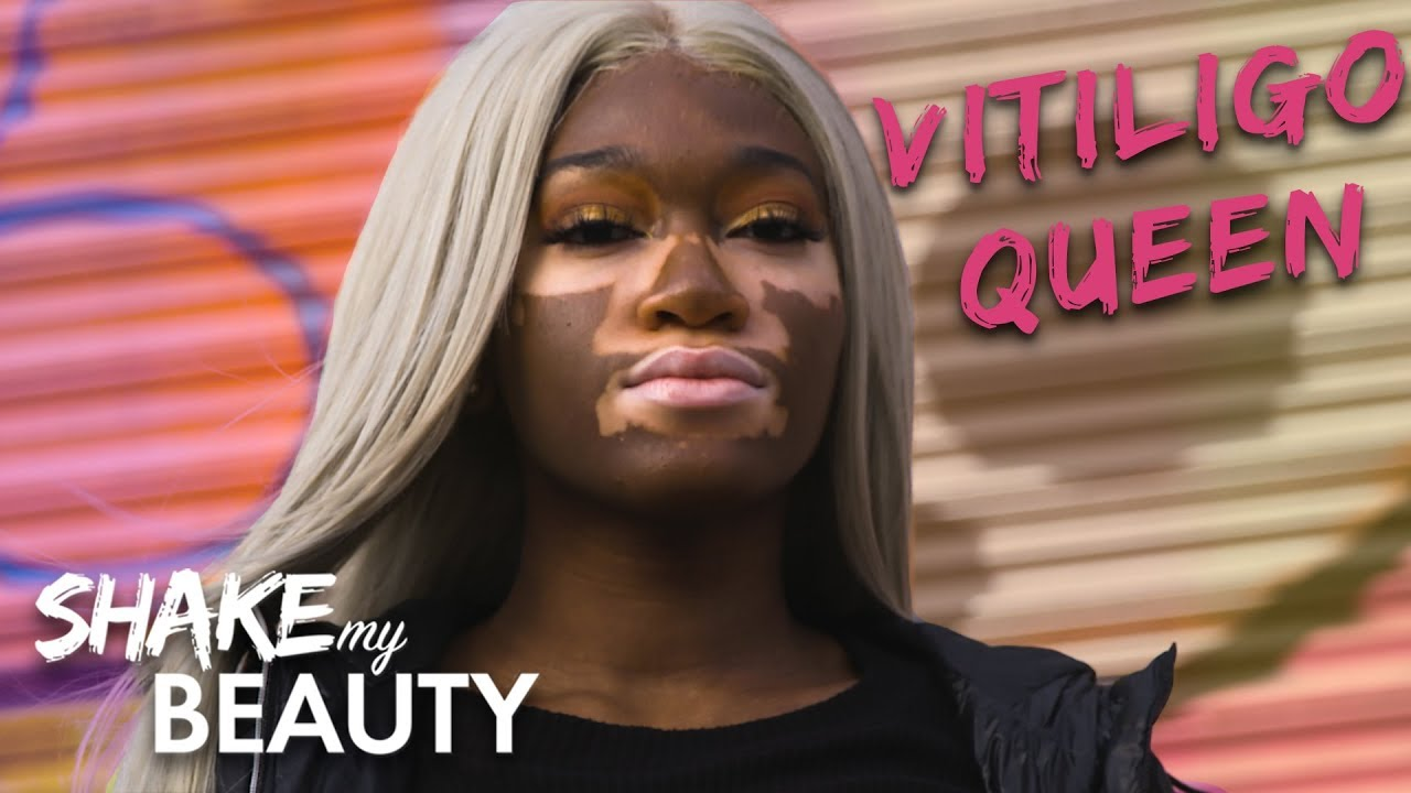 I Won't Hide My Vitiligo | SHAKE MY BEAUTY
