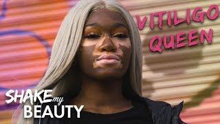 I Won't Hide My Vitiligo | SHAKE MY BEAUTY