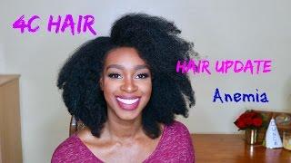 4c Hair Treating Anemia, Thinning hair, Hair loss