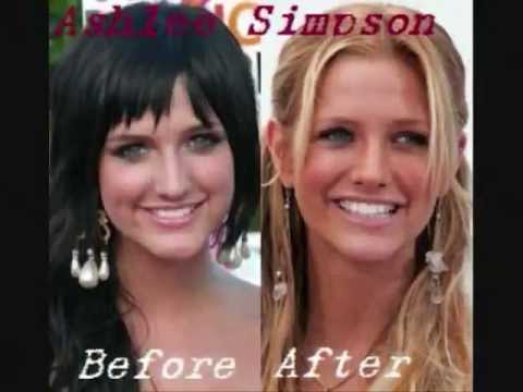 Another Top 10 Celebrities With Terrible Plastic Surgery ...