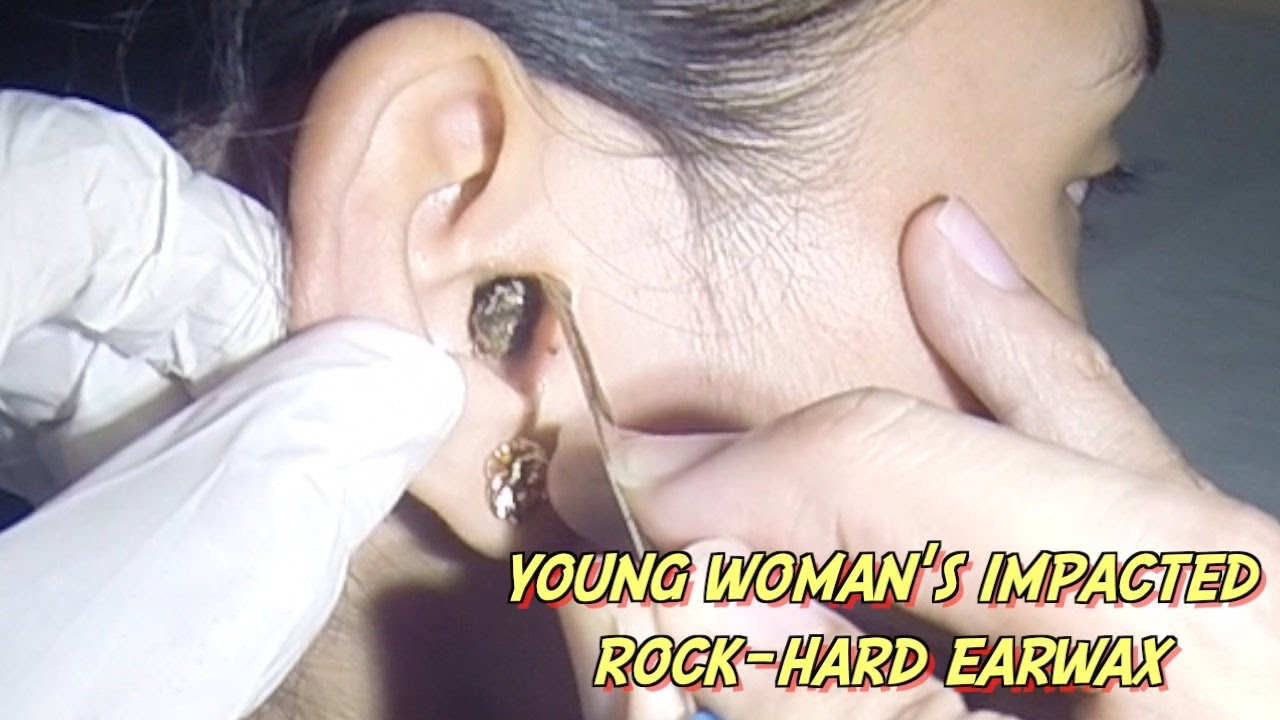 Young Womans Impacted RockHard Earwax Removal  YouTube