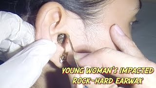 Young Woman's Impacted Rock-Hard Earwax Removal thumbnail