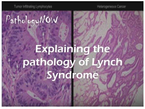 Explaining The Pathology Of Lynch Syndrome