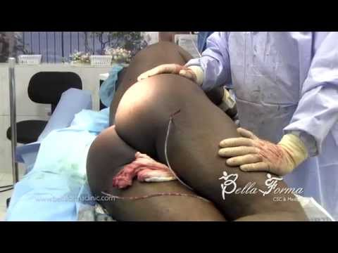 Buttloads of Pain: Ass Injections Gone Wrong from YouTube · Duration:  2 hours 16 minutes 52 seconds